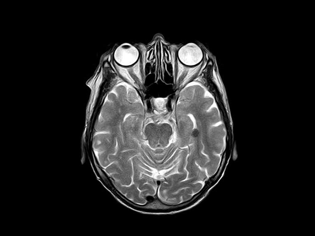 Radiology Brain Segmentation pre-labeling example