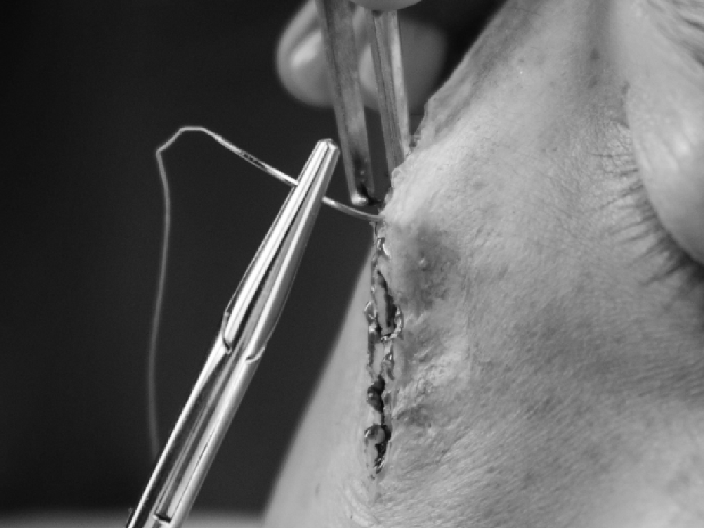 Surgery pre-labeling example