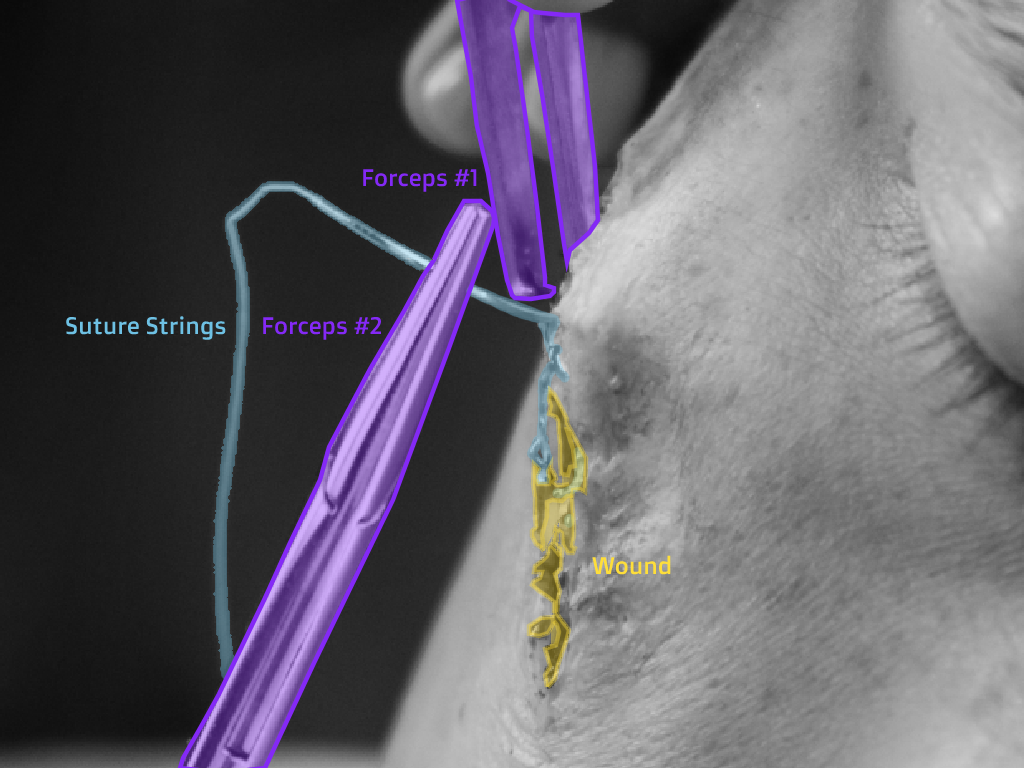 Surgery post-labeling example